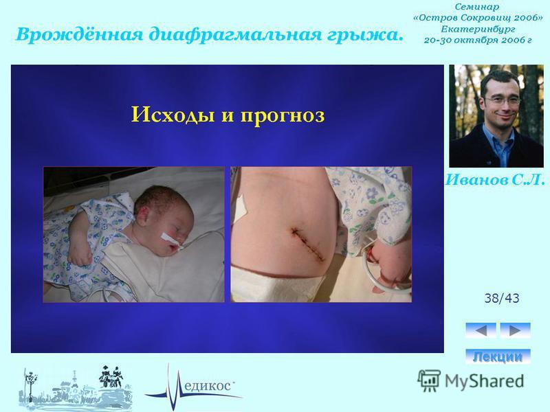 Диафрагмальная грыжа плода у беременных 63