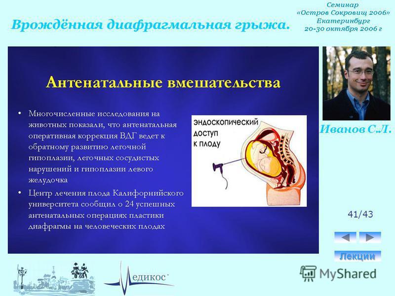 Врождённая диафрагмальная грыжа. Иванов С.Л. 41/43