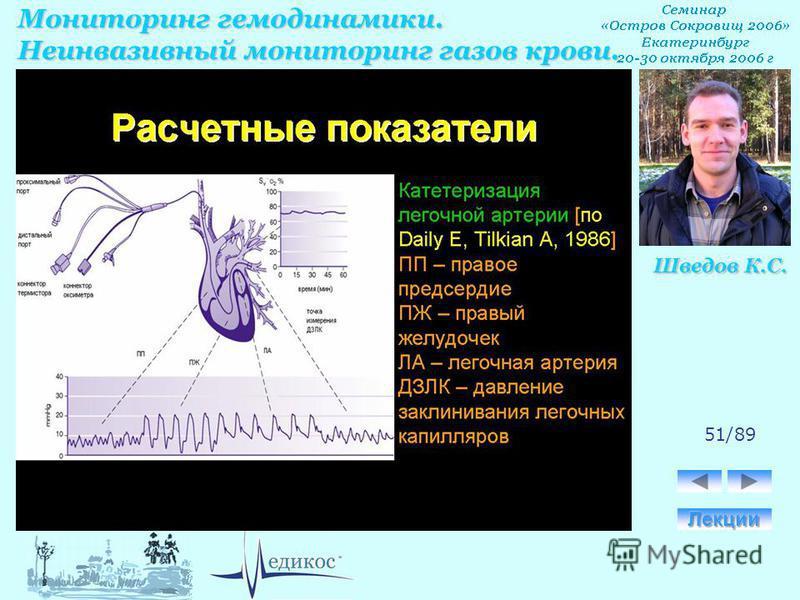 Мониторинг гемодинамики. Неинвазивный мониторинг газов крови. Шведов К.С. 51/89