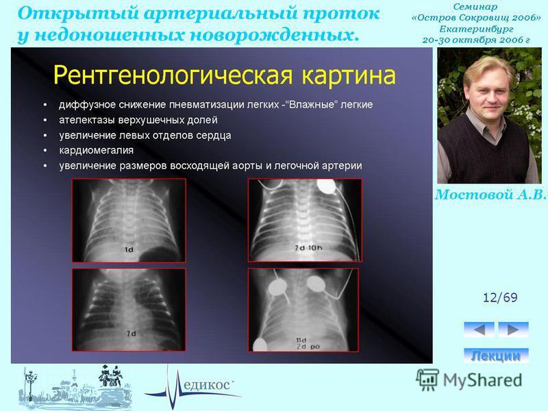 Открытый артериальный проток у недоношенных новорожденных. Мостовой А.В. 12/69