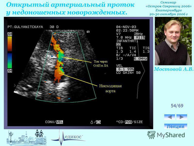 Открытый артериальный проток у недоношенных новорожденных. Мостовой А.В. 54/69