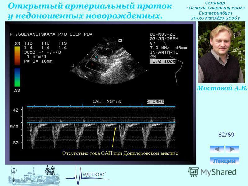 Открытый артериальный проток у недоношенных новорожденных. Мостовой А.В. 62/69