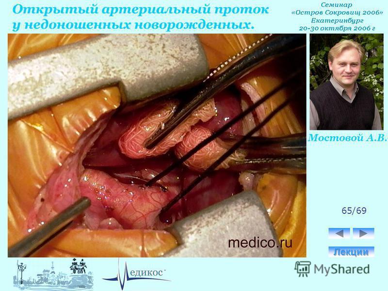 Открытый артериальный проток у недоношенных новорожденных. Мостовой А.В. 65/69
