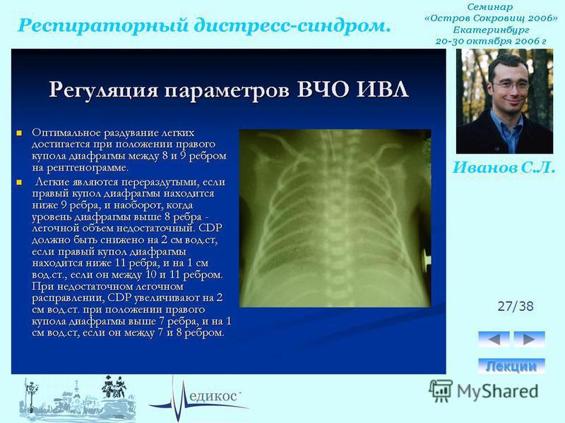Респираторный дистресс-синдром. Иванов С.Л. 27/38