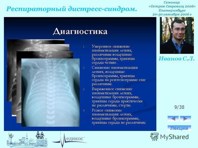 Респираторный дистресс-синдром. Иванов С.Л. 9/38