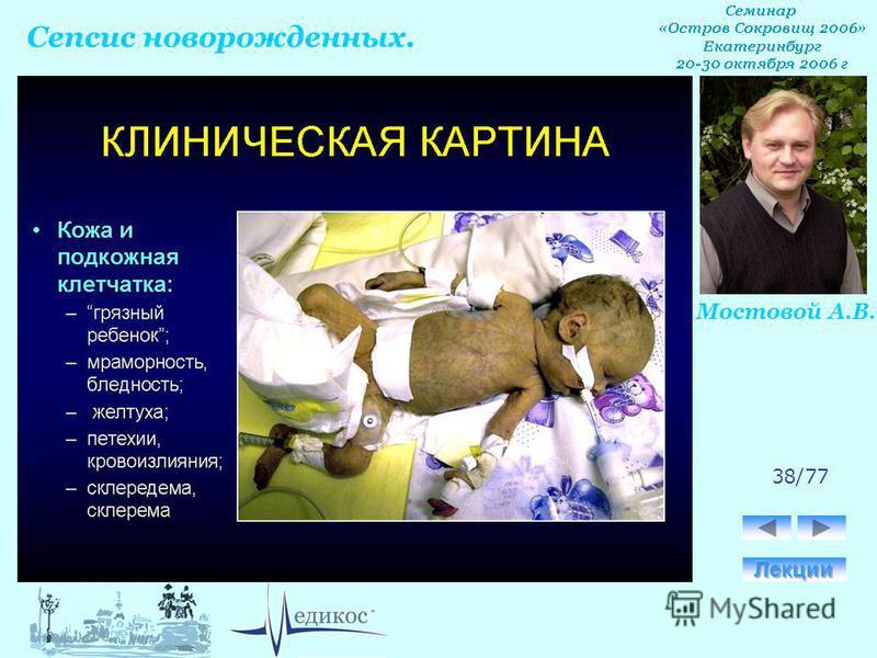Сепсис новорожденных. Мостовой А.В. 38/77