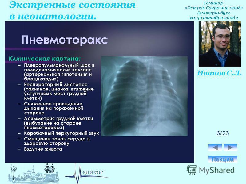 Экстренные состояния в неонатологии. Иванов С.Л. 6/23