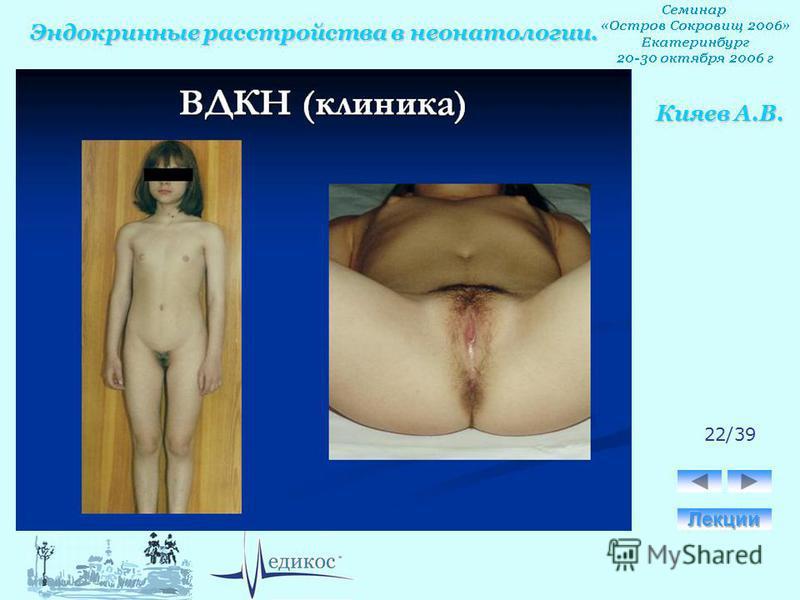 Эндокринные расстройства в неонатологии. Кияев А.В. 22/39