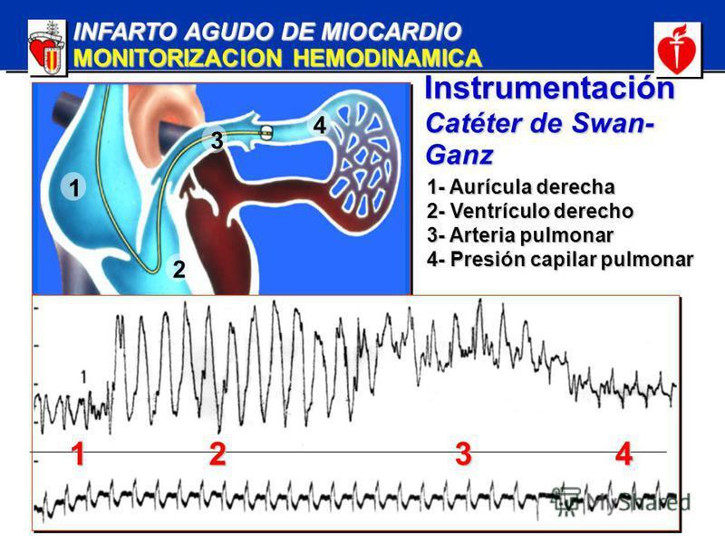 INFARTO AGUDO DE MIOCARDIO MONITORIZACION HEMODINAMICA Instrumentación Catéter de Swan- Ganz 1 2 4 3 1234 1- Aurícula derecha 2- Ventrículo derecho 3- Arteria pulmonar 4- Presión capilar pulmonar