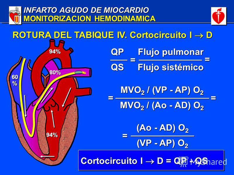INFARTO AGUDO DE MIOCARDIO MONITORIZACION HEMODINAMICA 60% 94% 94% 80% Cortocircuito I D = QP - QS ROTURA DEL TABIQUE IV. Cortocircuito I D QPQS Flujo pulmonar Flujo sistémico = = MVO 2 / (VP - AP) O 2 MVO 2 / (Ao - AD) O 2 = = (Ao - AD) O 2 (VP - AP