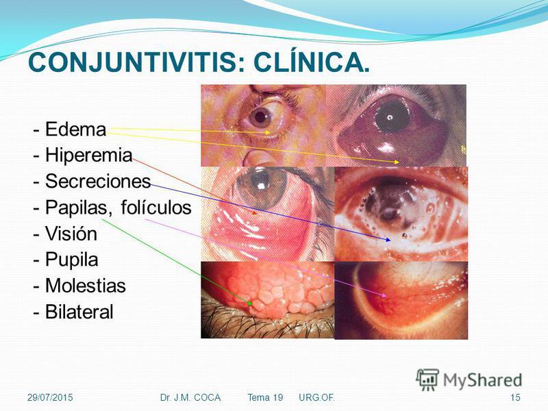 CONJUNTIVITIS: CLÍNICA. - Edema - Hiperemia - Secreciones - Papilas, folículos - Visión - Pupila - Molestias - Bilateral Dr. J.M. COCA Tema 19 URG.OF.1529/07/2015