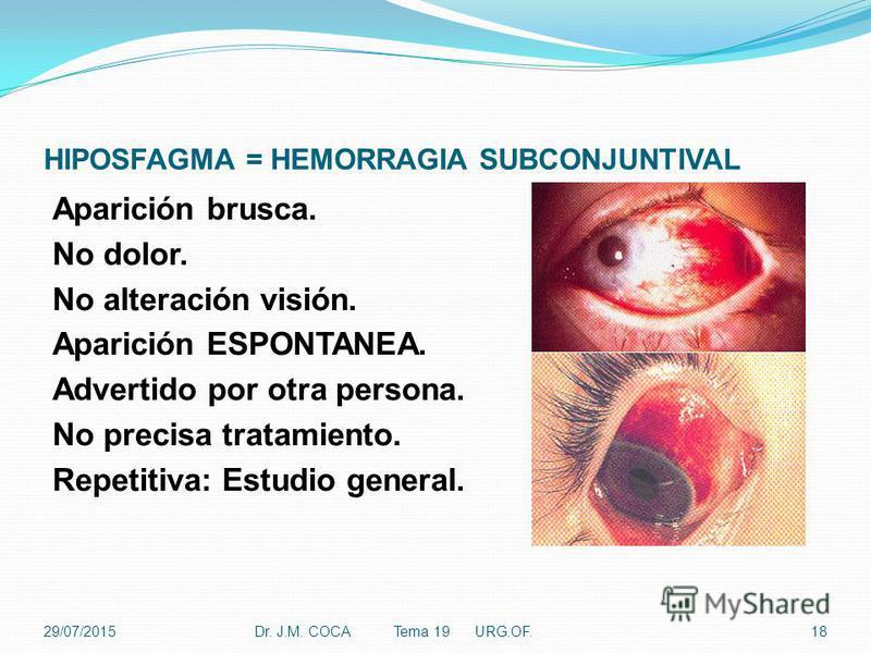 HIPOSFAGMA = HEMORRAGIA SUBCONJUNTIVAL Aparición brusca. No dolor. No alteración visión. Aparición ESPONTANEA. Advertido por otra persona. No precisa tratamiento. Repetitiva: Estudio general. Dr. J.M. COCA Tema 19 URG.OF.1829/07/2015