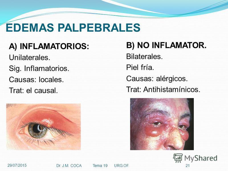 EDEMAS PALPEBRALES A) INFLAMATORIOS: Unilaterales. Sig. Inflamatorios. Causas: locales. Trat: el causal. Dr. J.M. COCA Tema 19 URG.OF.21 B) NO INFLAMATOR. Bilaterales. Piel fría. Causas: alérgicos. Trat: Antihistamínicos. 29/07/2015