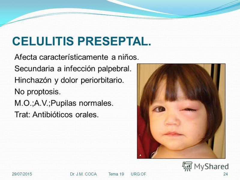 CELULITIS PRESEPTAL. Afecta característicamente a niños. Secundaria a infección palpebral. Hinchazón y dolor periorbitario. No proptosis. M.O.;A.V.;Pupilas normales. Trat: Antibióticos orales. 29/07/2015Dr. J.M. COCA Tema 19 URG.OF.24