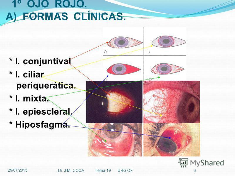 1º OJO ROJO. A) FORMAS CLÍNICAS. * I. conjuntival * I. ciliar periquerática. * I. mixta. * I. epiescleral. * Hiposfagma. Dr. J.M. COCA Tema 19 URG.OF.3 29/07/2015