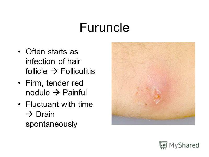Furuncle Often starts as infection of hair follicle Folliculitis Firm, tender red nodule Painful Fluctuant with time Drain spontaneously