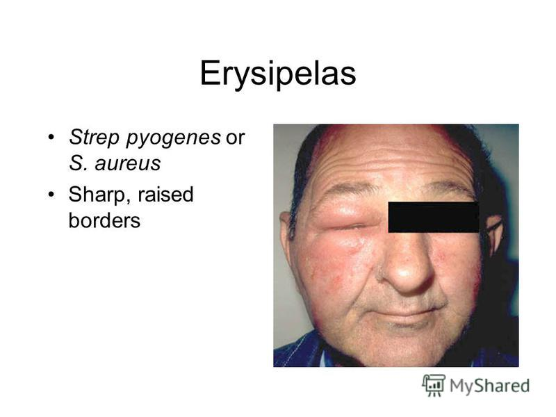 Erysipelas Strep pyogenes or S. aureus Sharp, raised borders