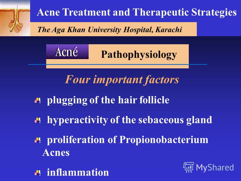 The Aga Khan University Hospital, Karachi Acne Treatment and Therapeutic Strategies Four important factors plugging of the hair follicle hyperactivity of the sebaceous gland proliferation of Propionobacterium Acnes inflammation Pathophysiology