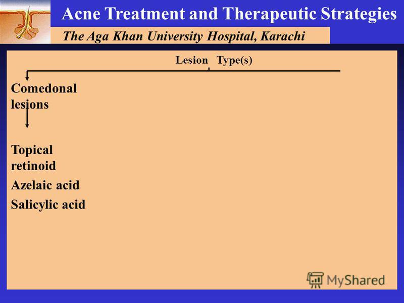 The Aga Khan University Hospital, Karachi Acne Treatment and Therapeutic Strategies Type(s)Lesion Comedonal lesions Topical retinoid Azelaic acid Salicylic acid