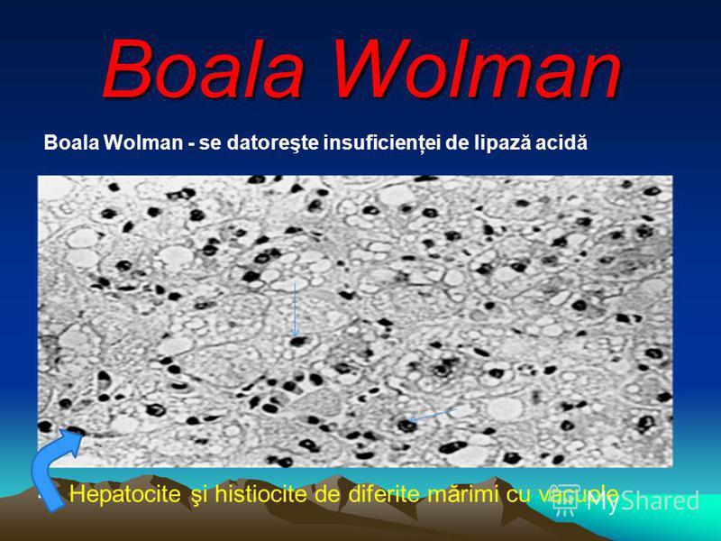 Boala Wolman Boala Wolman - se datoreşte insuficienţei de lipază acidă Hepatocite şi histiocite de diferite mărimi cu vacuole