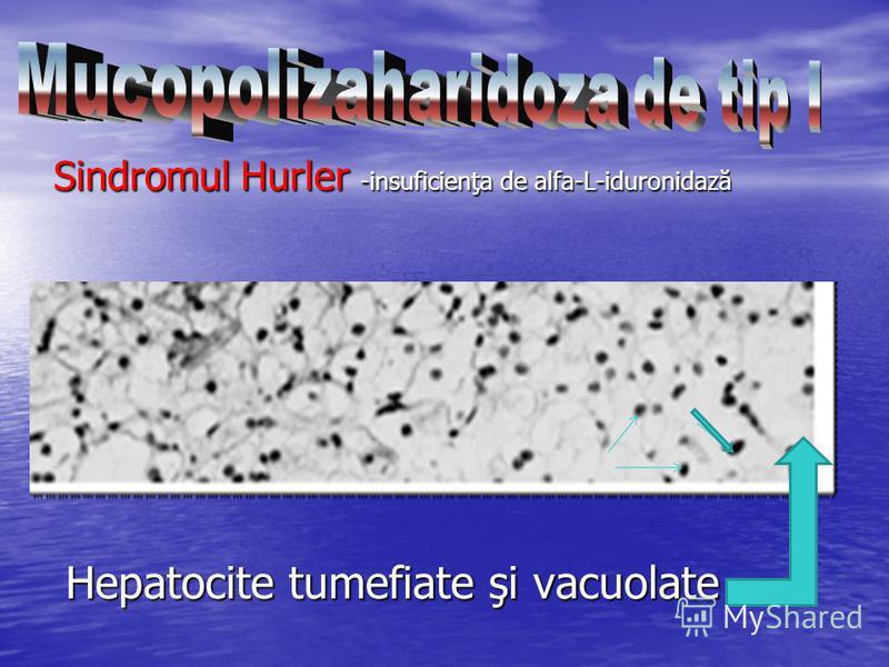 Sindromul Hurler -insuficienţa de alfa-L-iduronidază Hepatocite tumefiate şi vacuolate Sindromul Hurler -insuficienţa de alfa-L-iduronidază Hepatocite tumefiate şi vacuolate