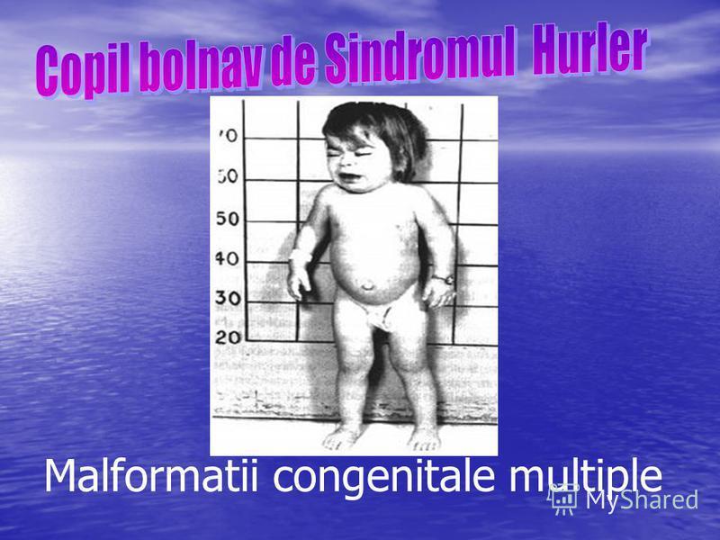 Malformatii congenitale multiple