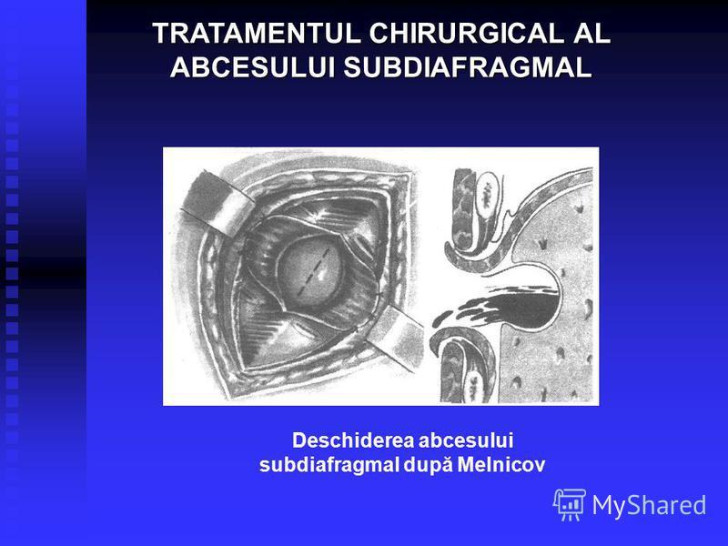 Deschiderea abcesului subdiafragmal după Melnicov TRATAMENTUL CHIRURGICAL AL ABCESULUI SUBDIAFRAGMAL