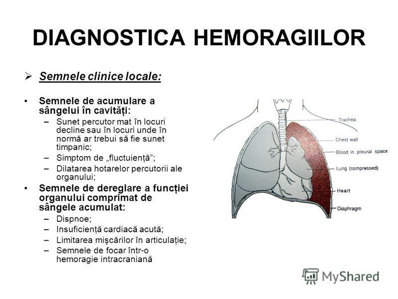 DIAGNOSTICA HEMORAGIILOR Semnele clinice locale: Semnele de acumulare a sângelui în cavităţi: –Sunet percutor mat în locuri decline sau în locuri unde în normă ar trebui să fie sunet timpanic; –Simptom de fluctuienţă; –Dilatarea hotarelor percutorii