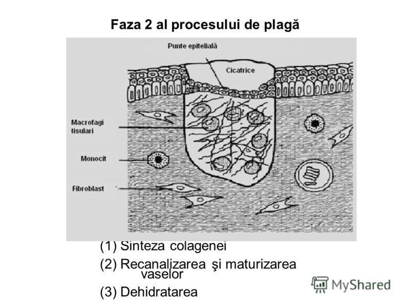Faza 2 al procesului de plagă (1) Sinteza colagenei (2) Recanalizarea şi maturizarea vaselor (3) Dehidratarea