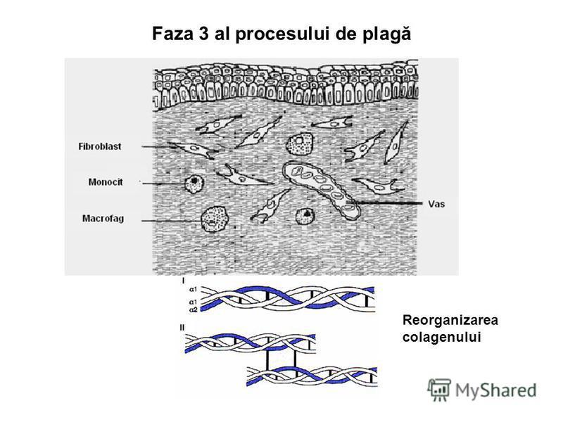 Faza 3 al procesului de plagă Reorganizarea colagenului