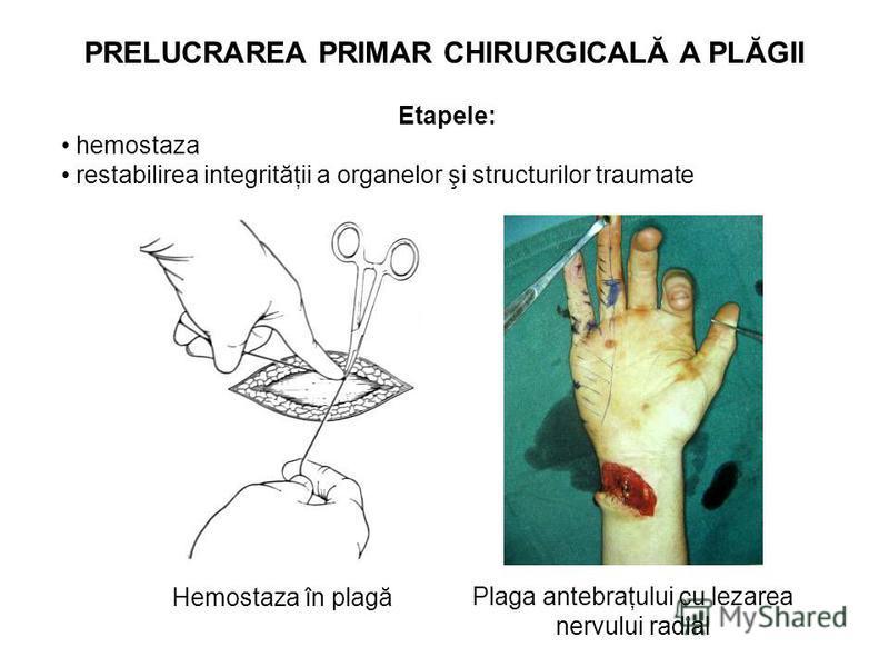 Etapele: hemostaza restabilirea integrităţii a organelor şi structurilor traumate Plaga antebraţului cu lezarea nervului radial PRELUCRAREA PRIMAR CHIRURGICALĂ A PLĂGII Hemostaza în plagă