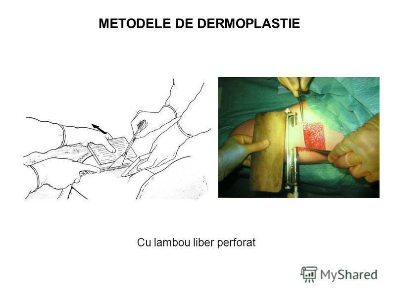 METODELE DE DERMOPLASTIE Cu lambou liber perforat