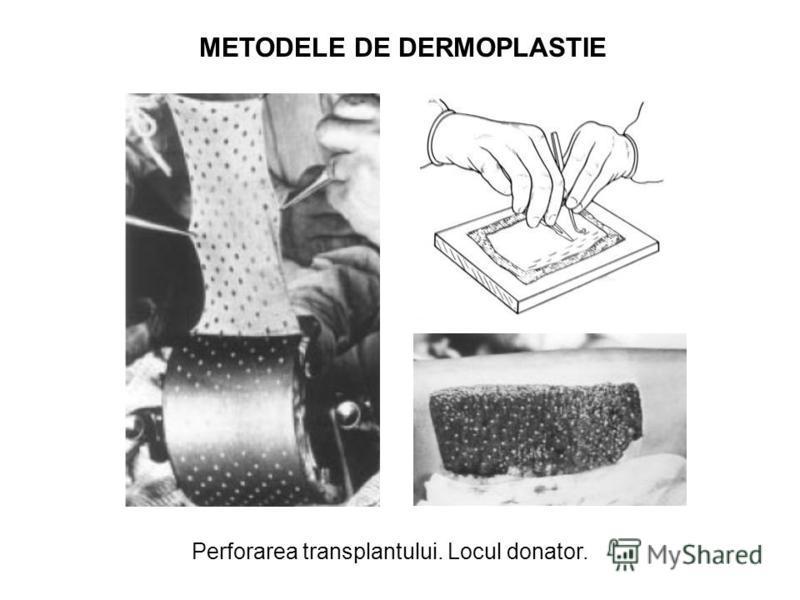 METODELE DE DERMOPLASTIE Perforarea transplantului. Locul donator.