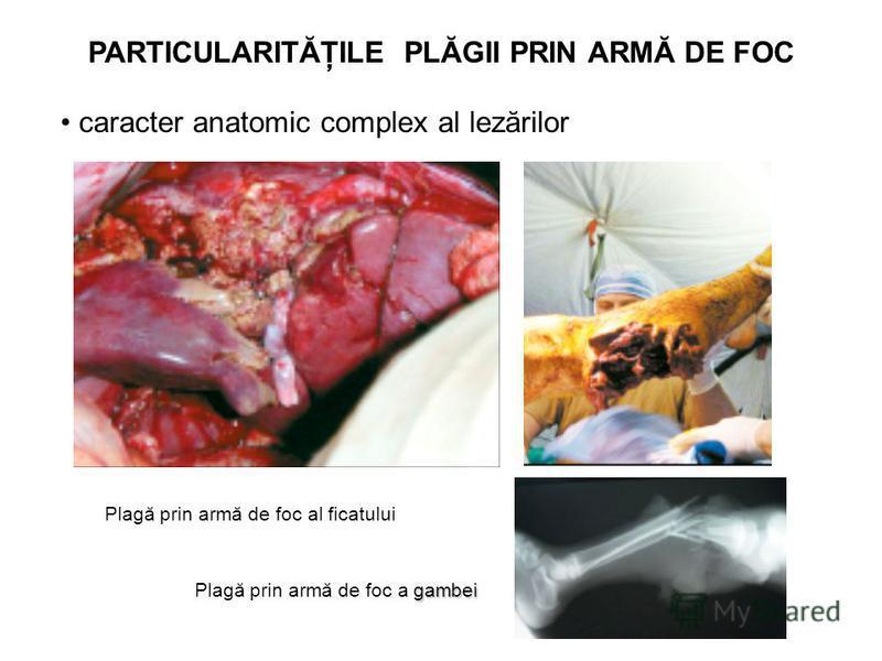 PARTICULARITĂŢILE PLĂGII PRIN ARMĂ DE FOC caracter anatomic complex al lezărilor Plagă prin armă de foc al ficatului gambei Plagă prin armă de foc a gambei