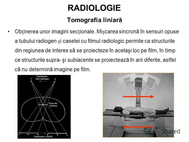 RADIOLOGIE Tomografia liniară Obinerea unor imagini secionale. Micarea sincronă în sensuri opuse a tubului radiogen i casetei cu filmul radiologic permite ca structurile din regiunea de interes să se proiecteze în acelaşi loc pe film, în timp ce stru
