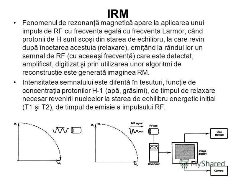 IRM Fenomenul de rezonanţă magnetică apare la aplicarea unui impuls de RF cu frecvenţa egală cu frecvenţa Larmor, când protonii de H sunt scoşi din starea de echilibru, la care revin după încetarea acestuia (relaxare), emiţând la rândul lor un semnal