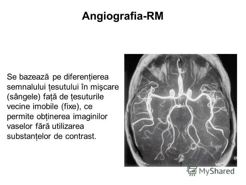 Angiografia-RM Se bazează pe diferenţierea semnalului ţesutului în mişcare (sângele) faţă de ţesuturile vecine imobile (fixe), ce permite obţinerea imaginilor vaselor fără utilizarea substanţelor de contrast.