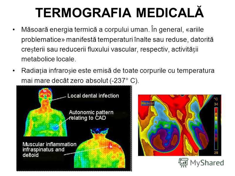 Măsoară energia termică a corpului uman. În general, «ariile problematice» manifestă temperaturi înalte sau reduse, datorită creterii sau reducerii fluxului vascular, respectiv, activităii metabolice locale. Radiaia infraroie este emisă de toate corp