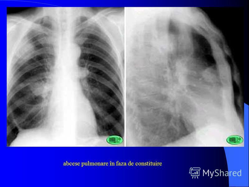 abcese pulmonare în faza de constituire