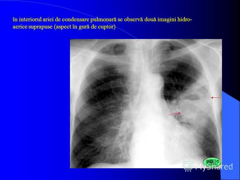 în interiorul ariei de condensare pulmonară se observă două imagini hidro- aerice suprapuse (aspect în gură de cuptor)