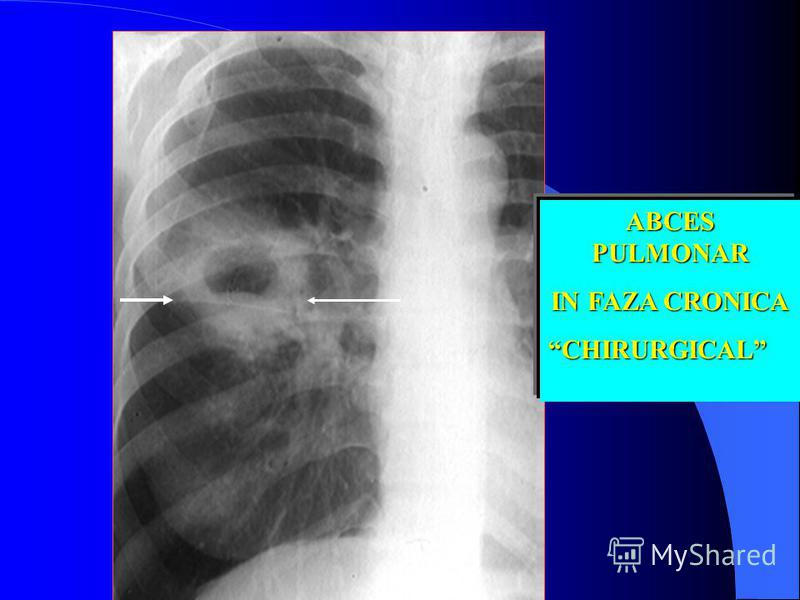 ABCES PULMONAR IN FAZA CRONICA CHIRURGICAL