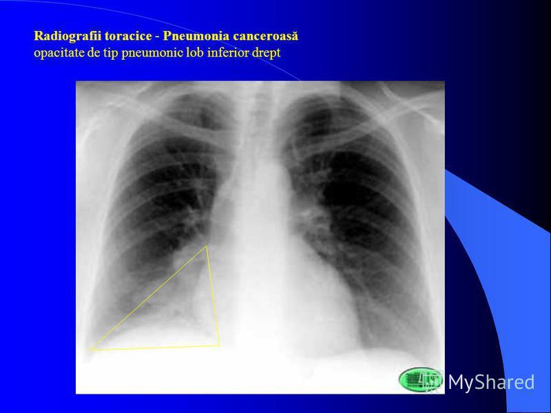 Radiografii toracice - Pneumonia canceroasă opacitate de tip pneumonic lob inferior drept