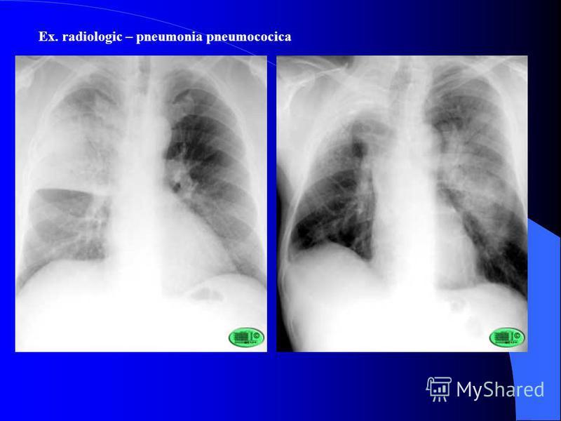 Ex. radiologic – pneumonia pneumococica