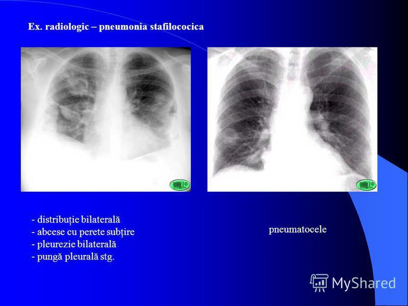 Ex. radiologic – pneumonia stafilococica - distribuţie bilaterală - abcese cu perete subţire - pleurezie bilaterală - pungă pleurală stg. pneumatocele