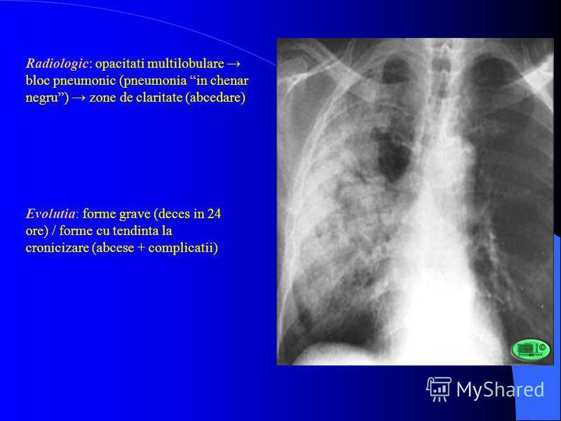 Radiologic: opacitati multilobulare bloc pneumonic (pneumonia in chenar negru) zone de claritate (abcedare) Evolutia: forme grave (deces in 24 ore) / forme cu tendinta la cronicizare (abcese + complicatii)