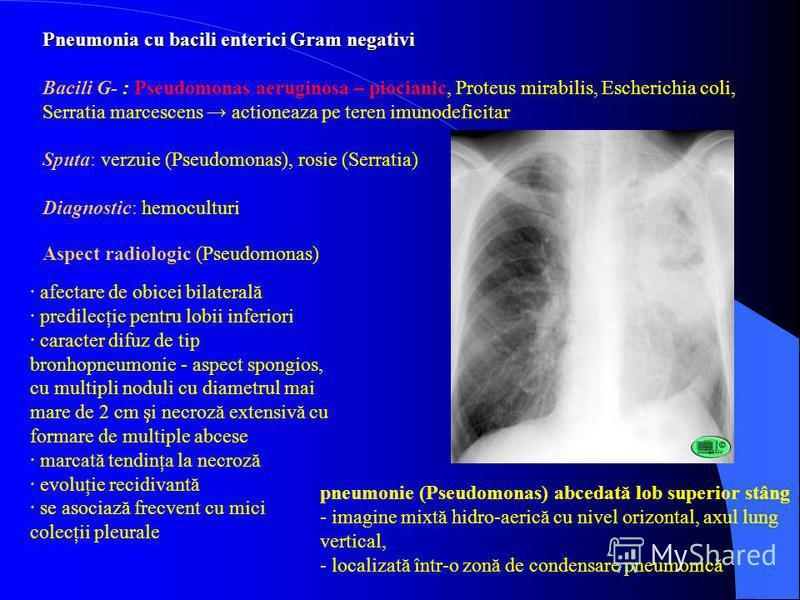 Pneumonia cu bacili enterici Gram negativi Bacili G- : Pseudomonas aeruginosa – piocianic, Proteus mirabilis, Escherichia coli, Serratia marcescens actioneaza pe teren imunodeficitar Sputa: verzuie (Pseudomonas), rosie (Serratia) Diagnostic: hemocult