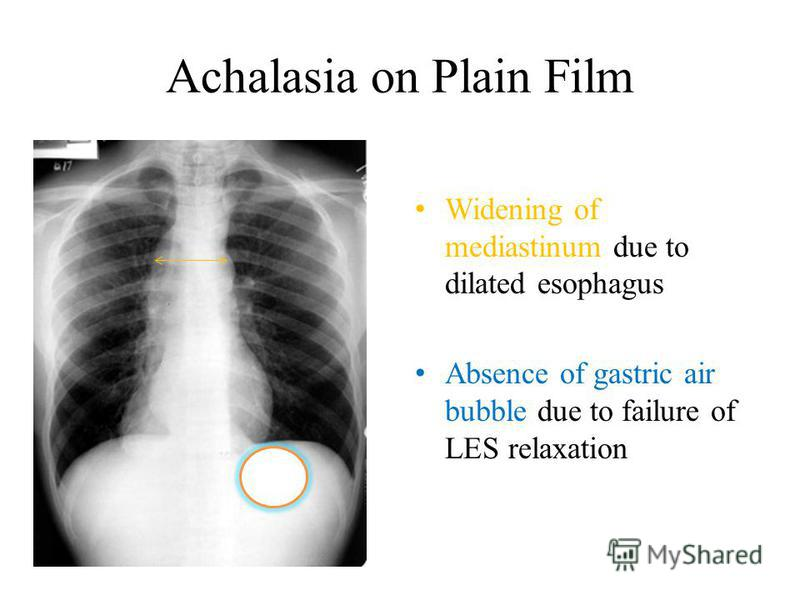 Achalasia on Plain Film Widening of mediastinum due to dilated esophagus Absence of gastric air bubble due to failure of LES relaxation