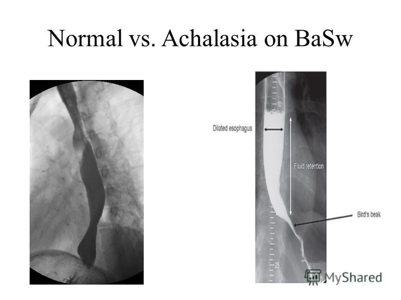 Normal vs. Achalasia on BaSw