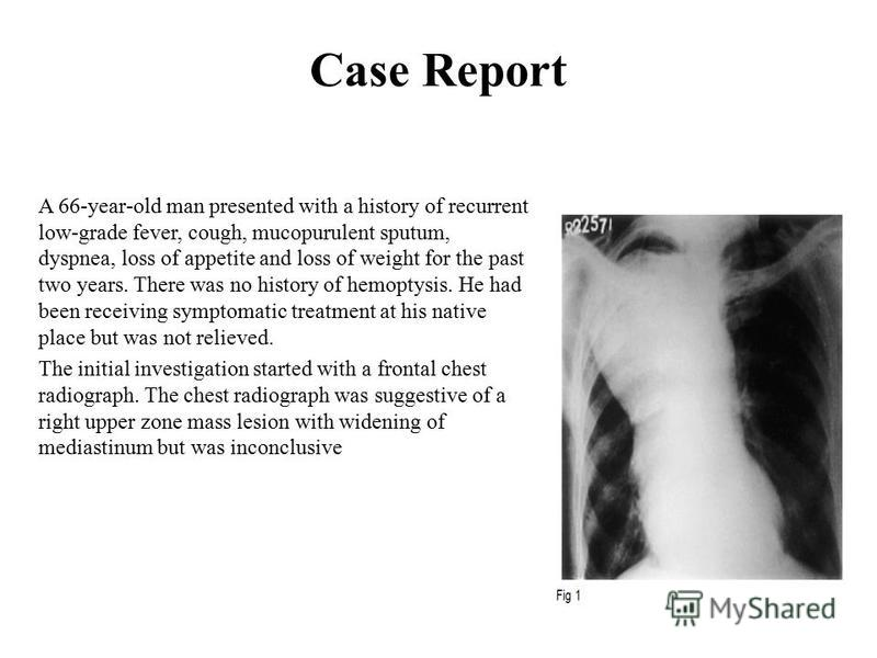 Case Report A 66-year-old man presented with a history of recurrent low-grade fever, cough, mucopurulent sputum, dyspnea, loss of appetite and loss of weight for the past two years. There was no history of hemoptysis. He had been receiving symptomati