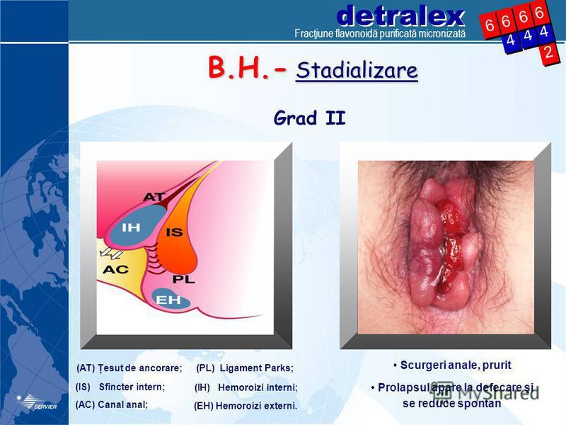 detralex 2 2 4 4 4 4 6 6 4 4 6 6 6 6 6 6 B.H.- Stadializare Grad II (AT) Ţesut de ancorare; (IS) Sfincter intern; (IH) Hemoroizi interni; (PL) Ligament Parks; (AC) Canal anal; (EH) Hemoroizi externi. Scurgeri anale, prurit Prolapsul apare la defecare